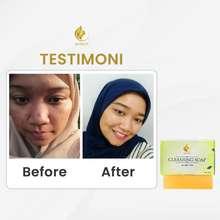 Royalty Cosmetic Sabun Pemutih Cepat Alami Penghilang Jerawat & Beruntusan Ampuh - Royalty Cleansing Soap
