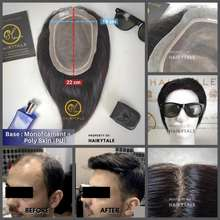 Natural Toupee/tutup botak pria, natural 20cm, luas 22x15, 100% Human Hair - 18x15 cm, Dark Brown